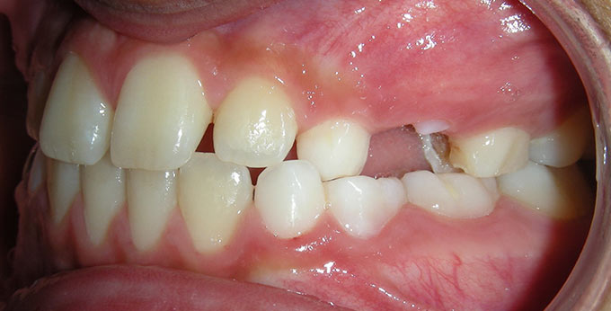 Child's left side view of teeth after treatment for an underbite with a plate